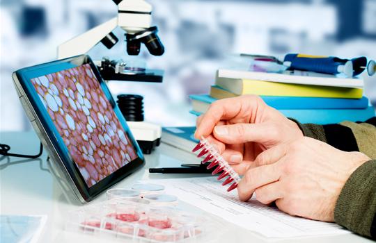 Biólogos del biobanco vasco crean un buscador informatizado de tejidos